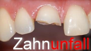 Zahnunfall – Jede Minute zählt!